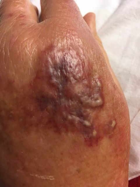 "MCHD has confirmed three cases of the flesh eating bacteria ""vibrio vulnifius"" in Mobile County. Photo: Gulf Coast News Today."